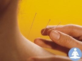 Acupuncture Info Session-GLC