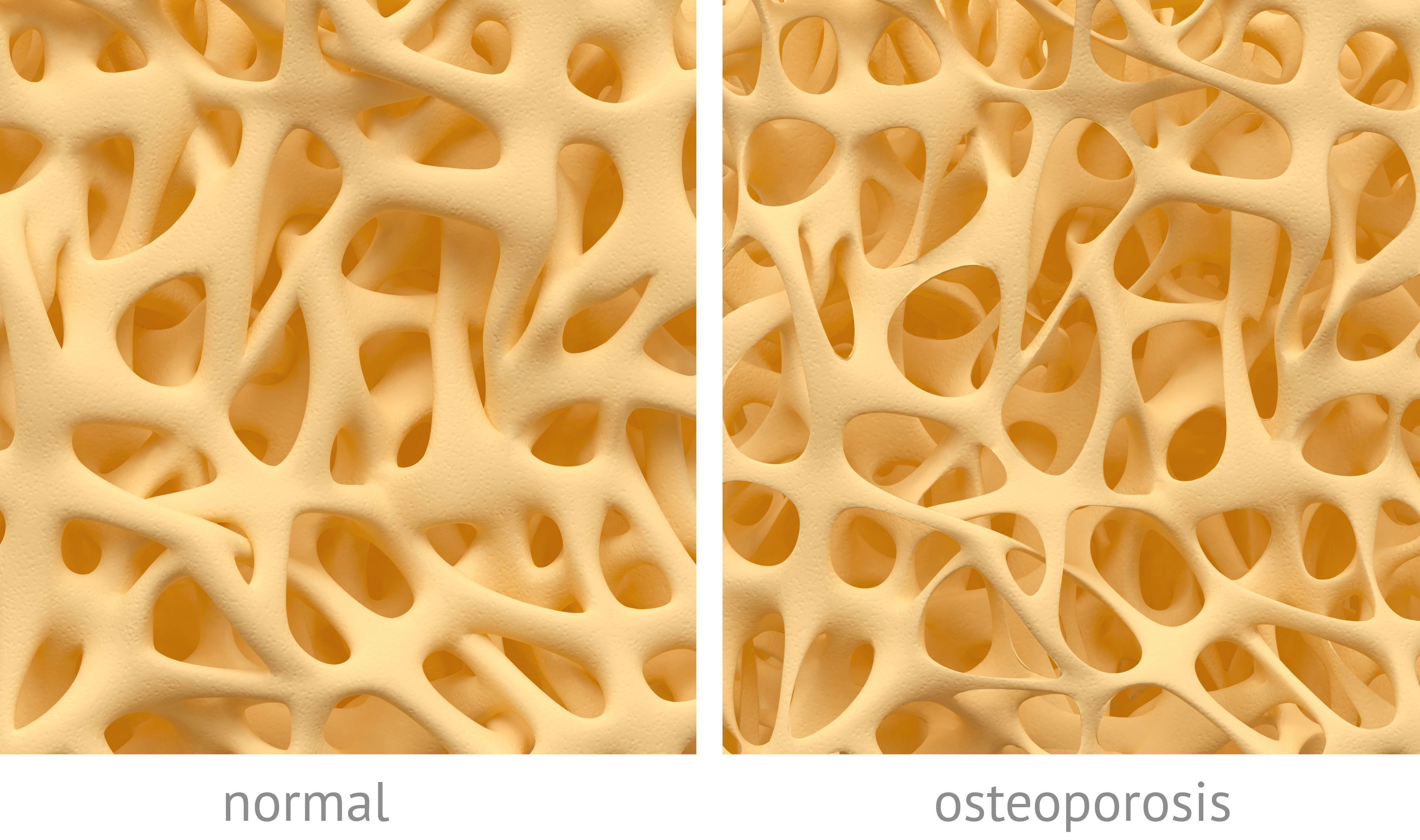 Osteoporosis - event type