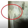 Hip Fracture Patient