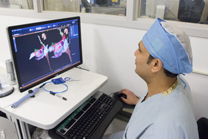 3D Mapping Technology for Ablation