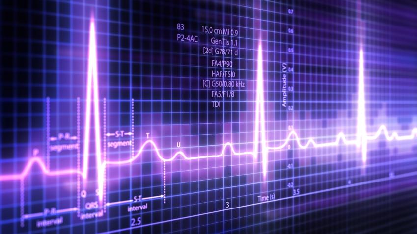 heart rhythm condition cropped